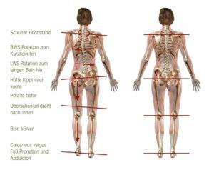 schuh orthopaedie podo orthesiologische einlagen gangbildanalyse allgaeu